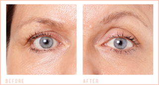 Before & After CACI Eye Revive